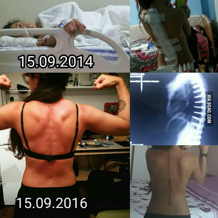 To the 9gag scoliosis warriors. Be strong and don't afraid of surgery. It has been 2 years since mine. I feel great!