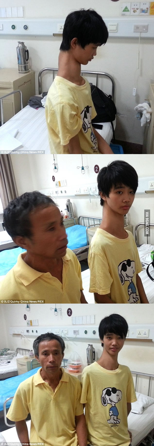 Chinese teenager Fu Wengui has Marfan syndrome, scoliosis, and three extra vertebrae in his neck.