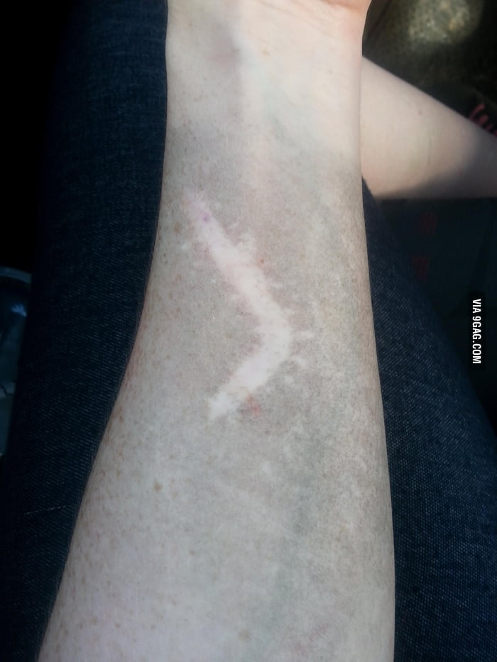 My scar doesn't hold dirt.