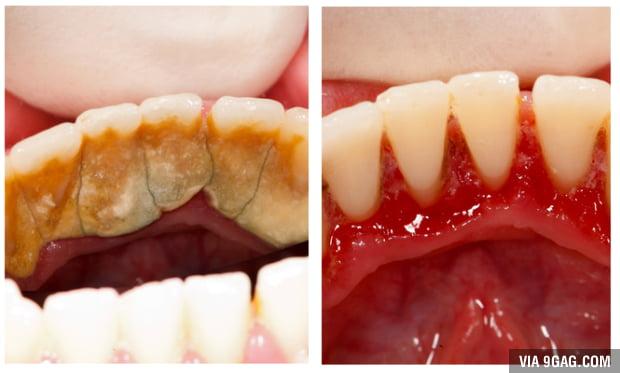 Чем почистить камень на зубах в домашних условиях 743