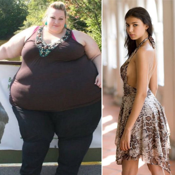 Alicia was 500lbs. Her husband left her cause she was too fat, but she didn't stop eating cause nothing is more important than food.! The lady on the right side is a model.