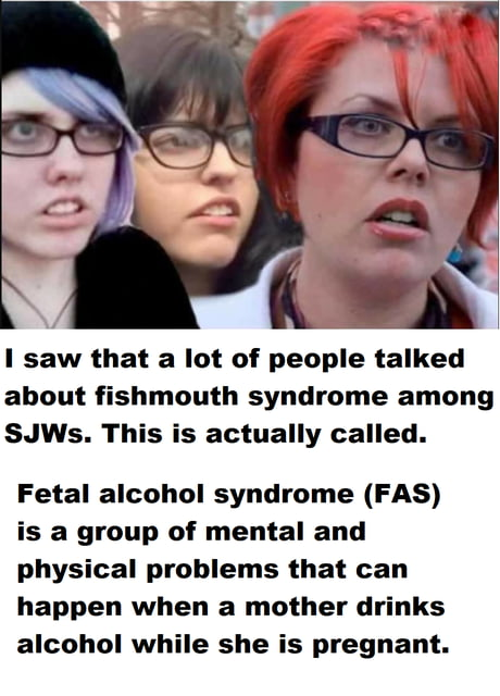 Fish Mouth Syndrome 9gag