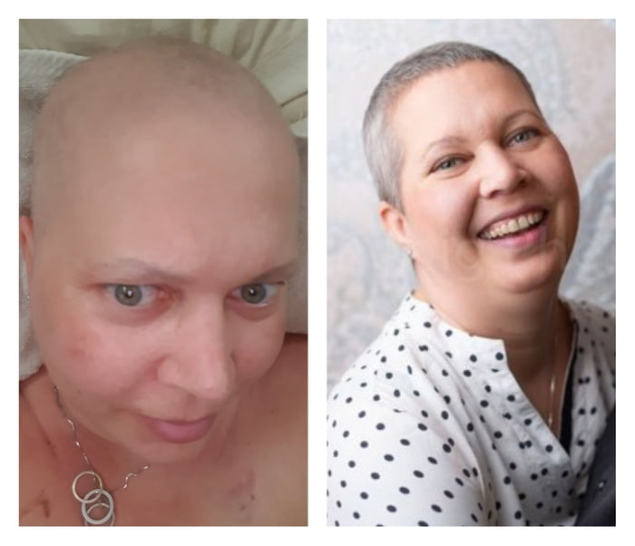 As everyone is posting their 1-year-change, hear is mine, beating cancer