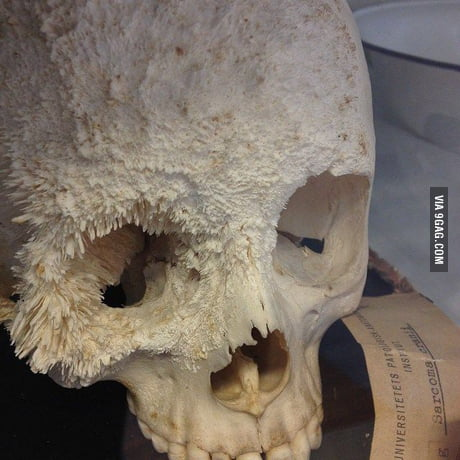 Bone Cancer My Worst Nightmare Next To Trypophobia Don T Google