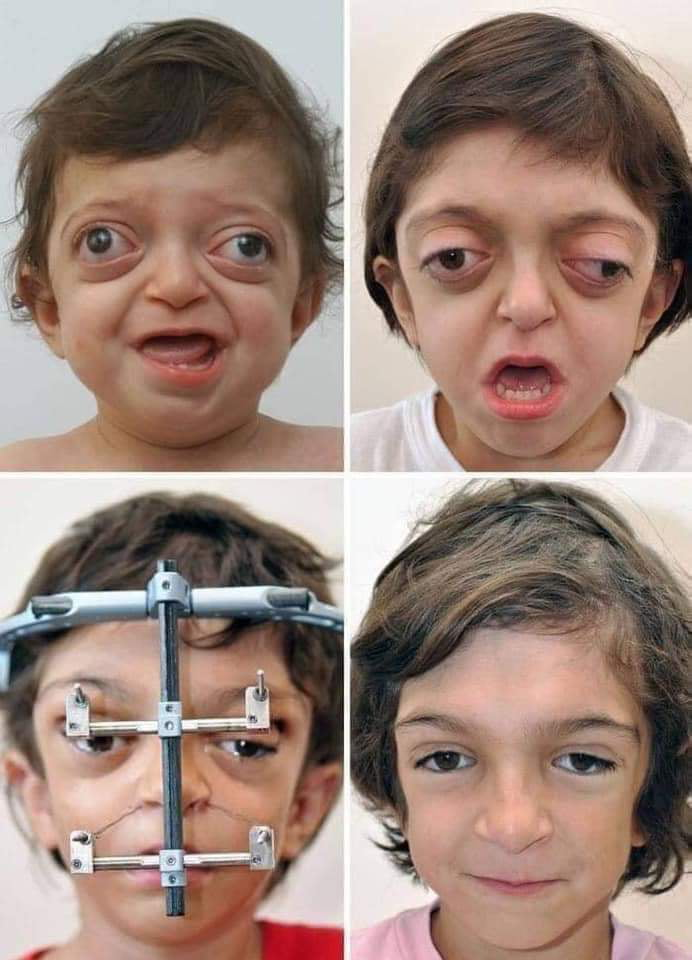 When the certificate is given to those who deserve it... This is how the cosmetic correction of a child with Crouzon syndrome was done. He even showed a significant improvement in vision and breathing