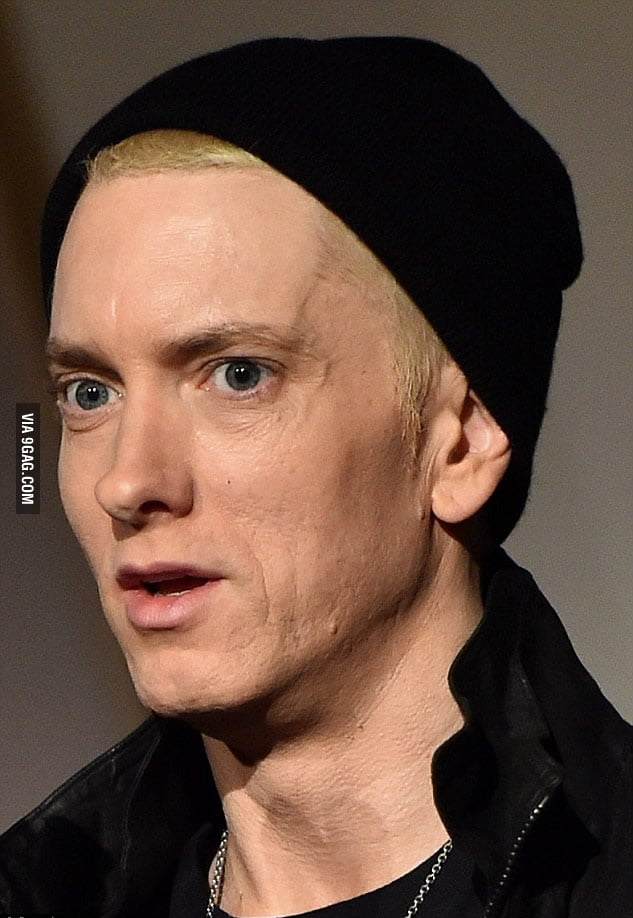 This photo broke my heart... Our Eminem is aging