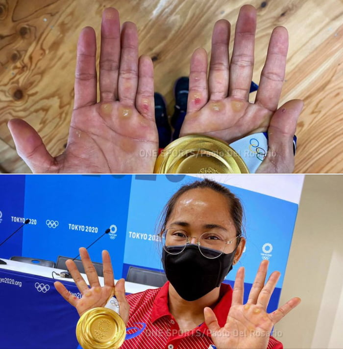 The hands of an Olympic gold winner in weightlifting