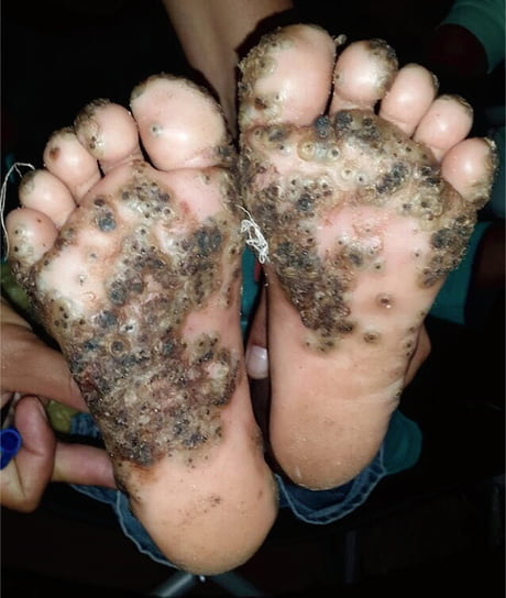 Graphic Girl Catches Gruesome Infection On Her Feet After Walking