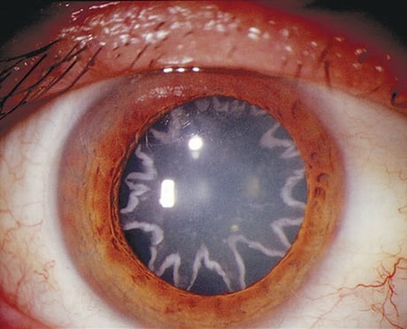 The eye of an electrician that was accidentally shocked by 14,000 volts of electricity on the job