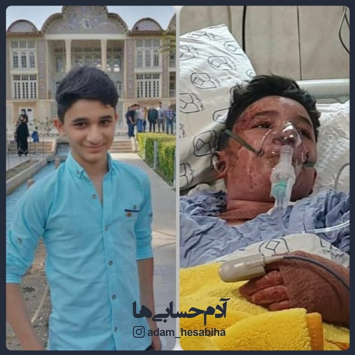 This week, 14 yo Ali, saved an old lady and her daughter from fire. He himself sadly passed away after two days in hospital.