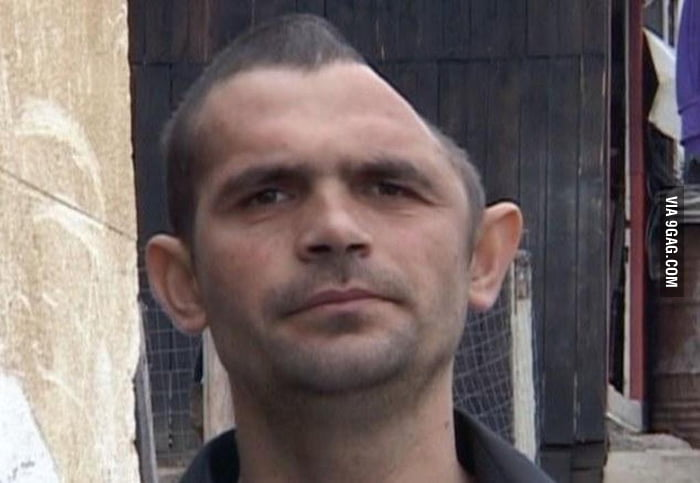 Romanian construction worker recovers from losing half his head after smashing it on concrete.