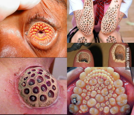 Feeling Weird Congrats You Have Trypophobia 9gag