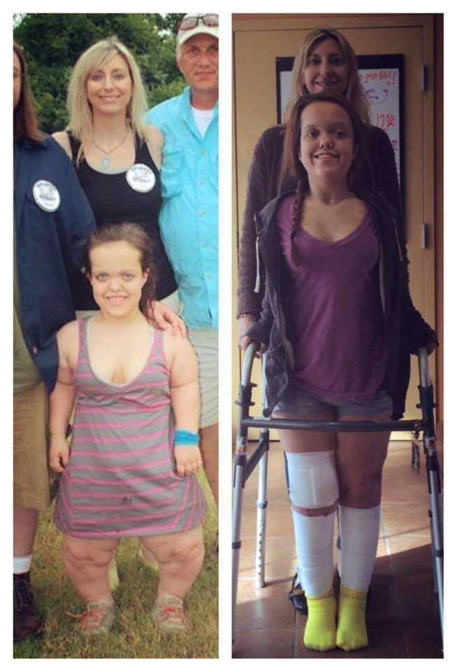 This lady's before and after limb lengthening