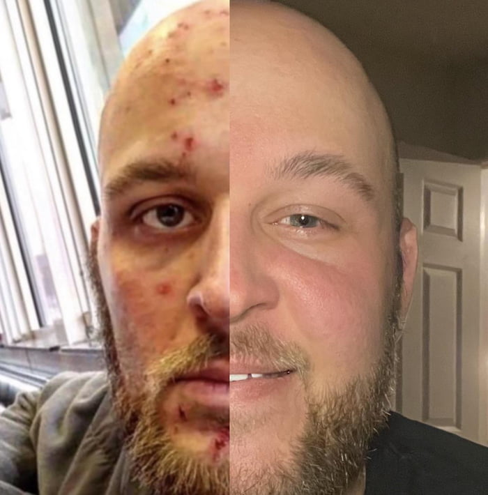 It's insane what the difference 3+ years of recovery from addiction has done for me. This picture speaks 1000 words.