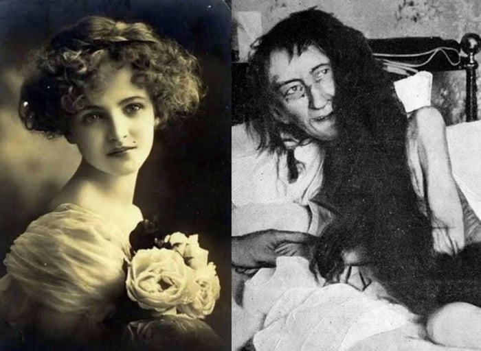 Blanche Monnier, a woman who was locked up by her mother for 25 years for falling in love with a pennilessness lawyer.