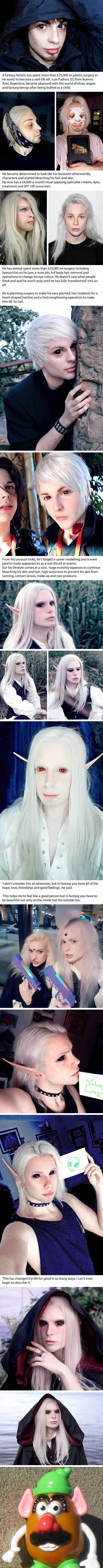 Fantasy Fanatic Splashes £27k On Plastic Surgery To Look Like An Elf