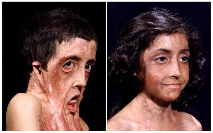 This burn victims facial reconstruction